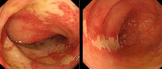 大腸内視鏡検査でみた虚血性大腸炎の病変部