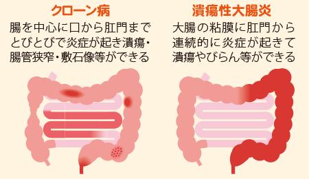 炎症性腸疾患である「クローン病」と「潰瘍性大腸炎」の説明